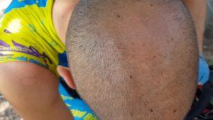 Hormigas voladoras en la cabeza de un ciclista por Comunidad Biker MTB